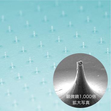 皮膚の中で溶ける針「マイクロニードル」とは?の画像