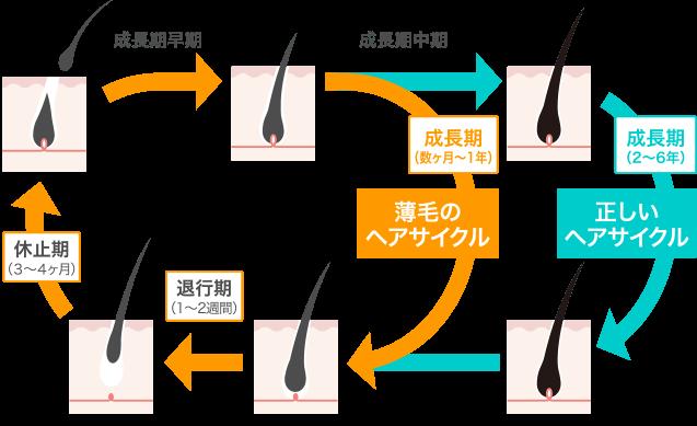 正しいヘアサイクルと薄毛のヘアサイクルの画像
