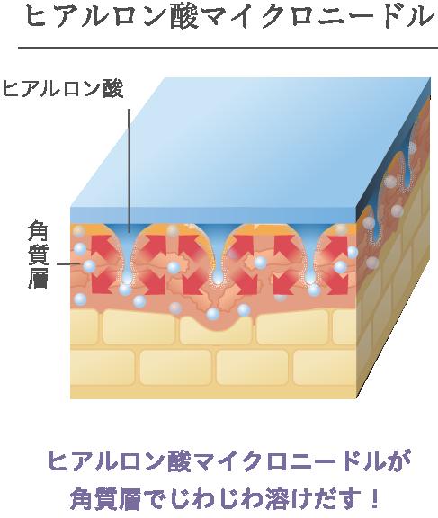 ヒアルロン酸マイクロニードル
