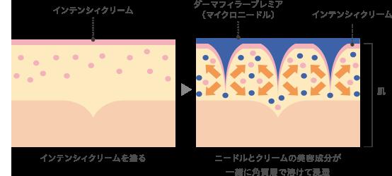 併用時の相乗効果のイメージ