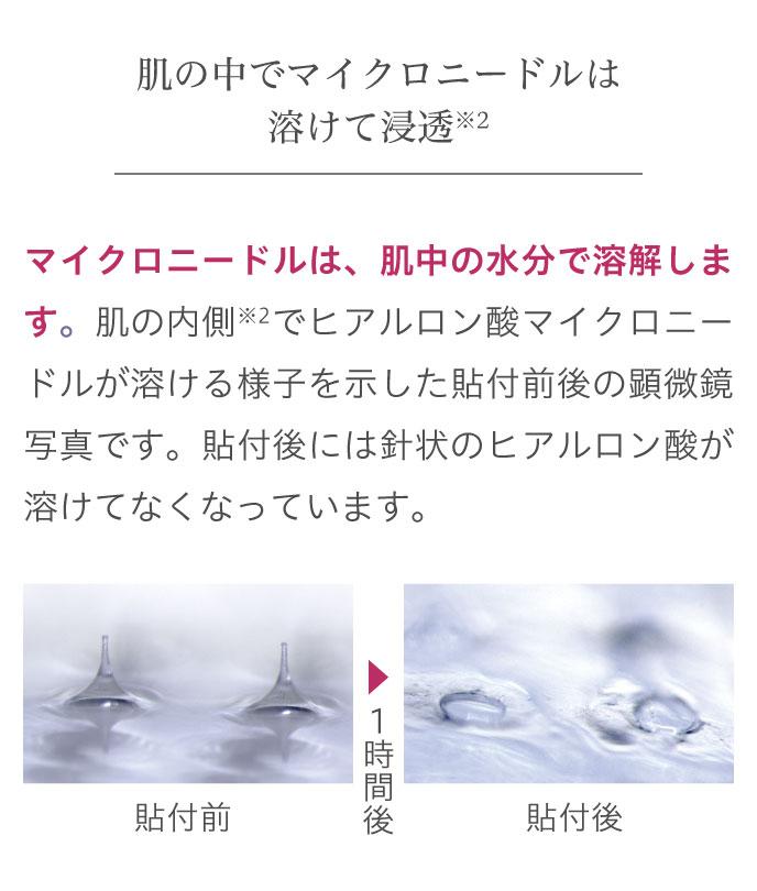 肌の中でマイクロニードルは溶けて浸透※2