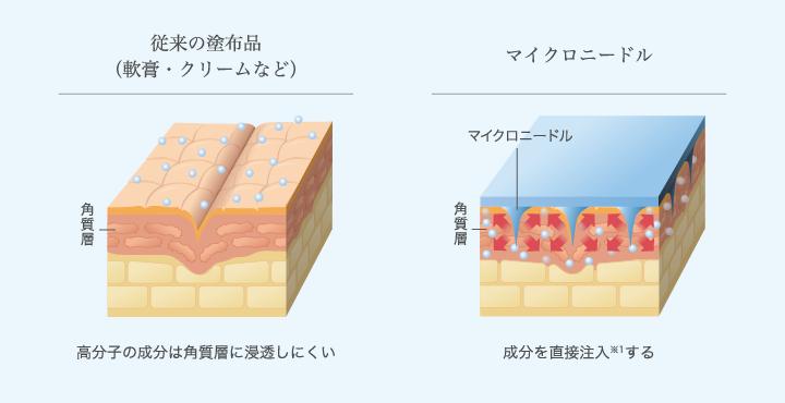 高分子成分を簡単・安全に皮膚内にリリース