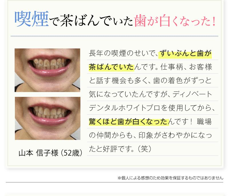 喫煙で茶ばんでいた歯が白くなった!