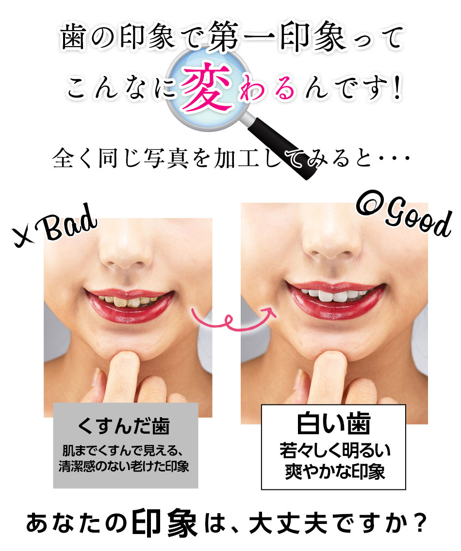 歯の印象でこんなに変わるんです!