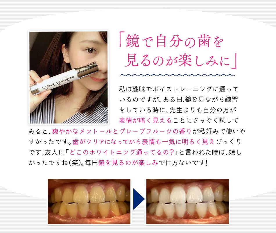 憧れの笑顔輝く白い歯に近づく!
