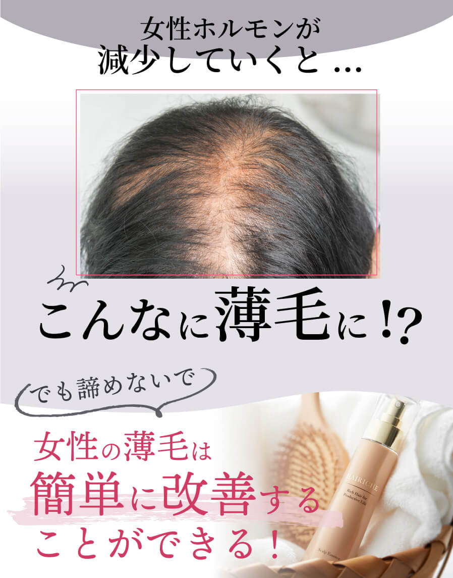 男性の薄毛と女性の薄毛はこんなに違う