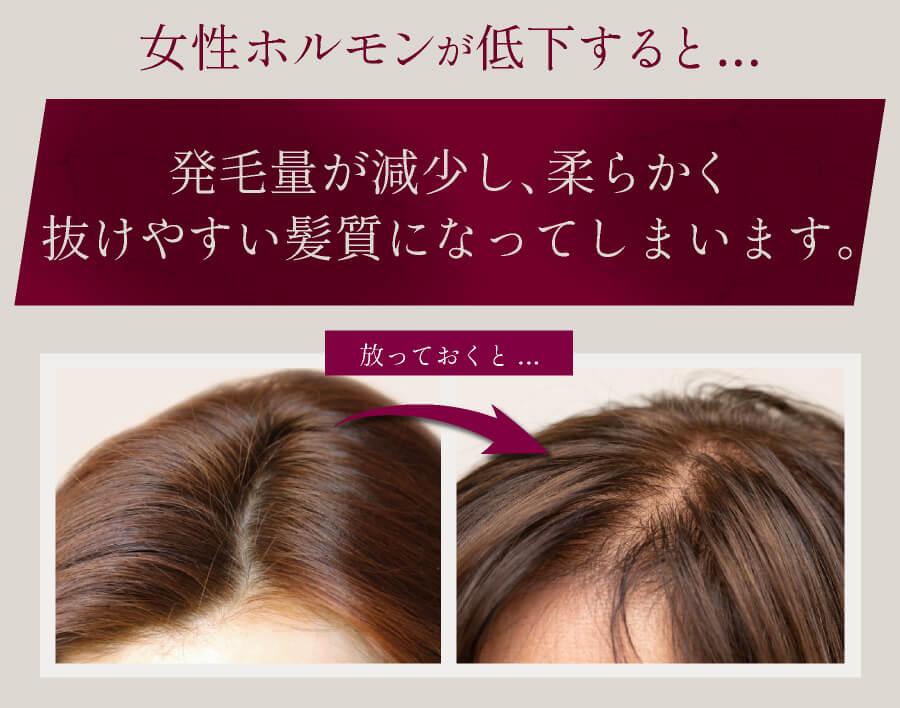 女性ホルモンが低下すると抜けやすい髪質に