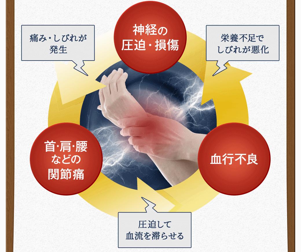 しびれの悪循環のイメージ