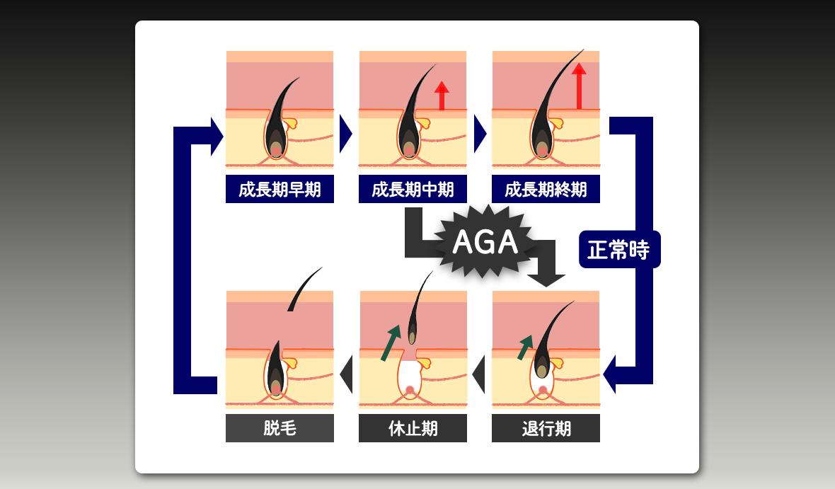 AGAの説明イラスト