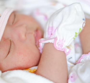 ほっぺに湿疹ができていて、かかないようにミトンをつけている赤ちゃん