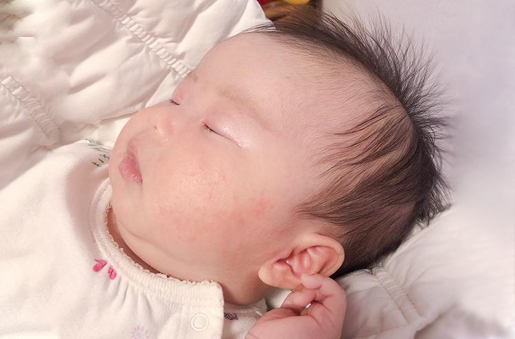 「赤ちゃんの肌荒れ」知っておきたい予防と対処法まるわかり!