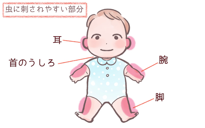 赤ちゃんの顔・全身で虫に刺されやすい部分