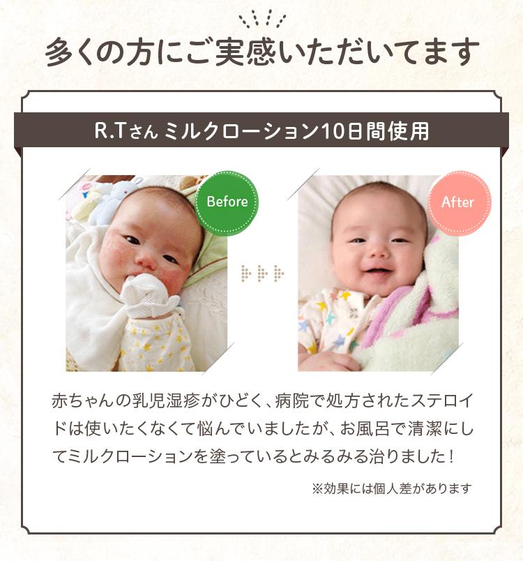 多くの方にご実感いただいてますR.Tさんミルクローション10日間使用 赤ちゃんの乳児湿疹がひどく、病院で処方されたステロイドは使いたくなくて悩んでいましたが、お風呂で清潔にしてミルクローションを塗っているとみるみる治りました! ※効果には個人差があります