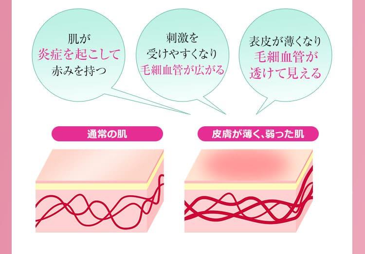 肌が炎症を起こして赤みを持つ/刺激を受けやすくなり毛細血管が広がる/表皮が薄くなり毛細血管が透けて見える
