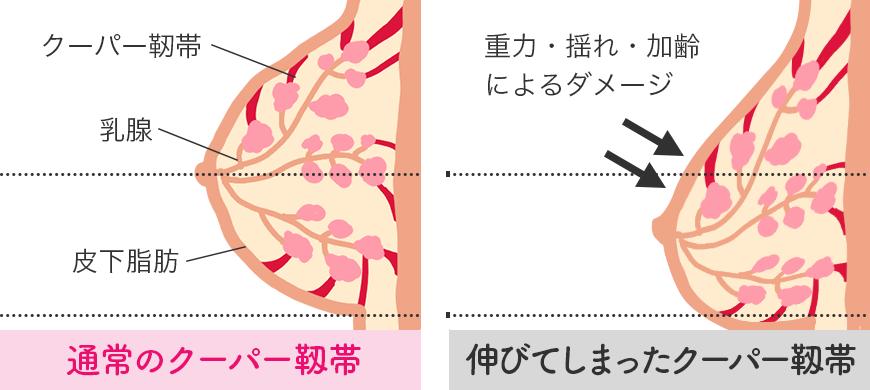 通常のクーパー靱帯と伸びてしまったクーパー靱帯