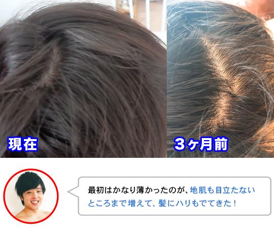 最初はかなり薄かったのが、地肌も目立たない ところまで増えて、髪にハリもでてきた!