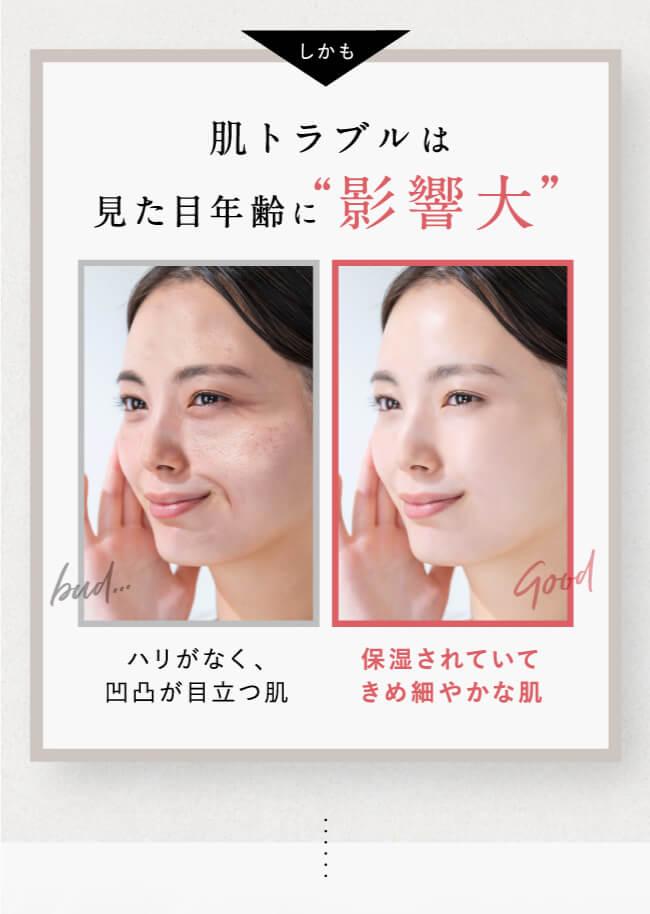 """しかも肌トラブルは見た目年齢に""""影響大""""。bad:ハリがなく、凹凸が目立つ肌。good:保湿されていてきめ細かな肌"""