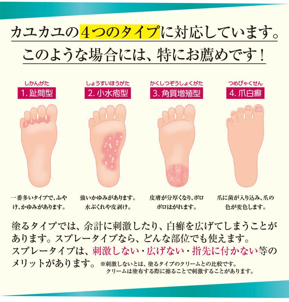 カユカユの4つのタイプに対応しています。このような場合には、特にお薦めです!
