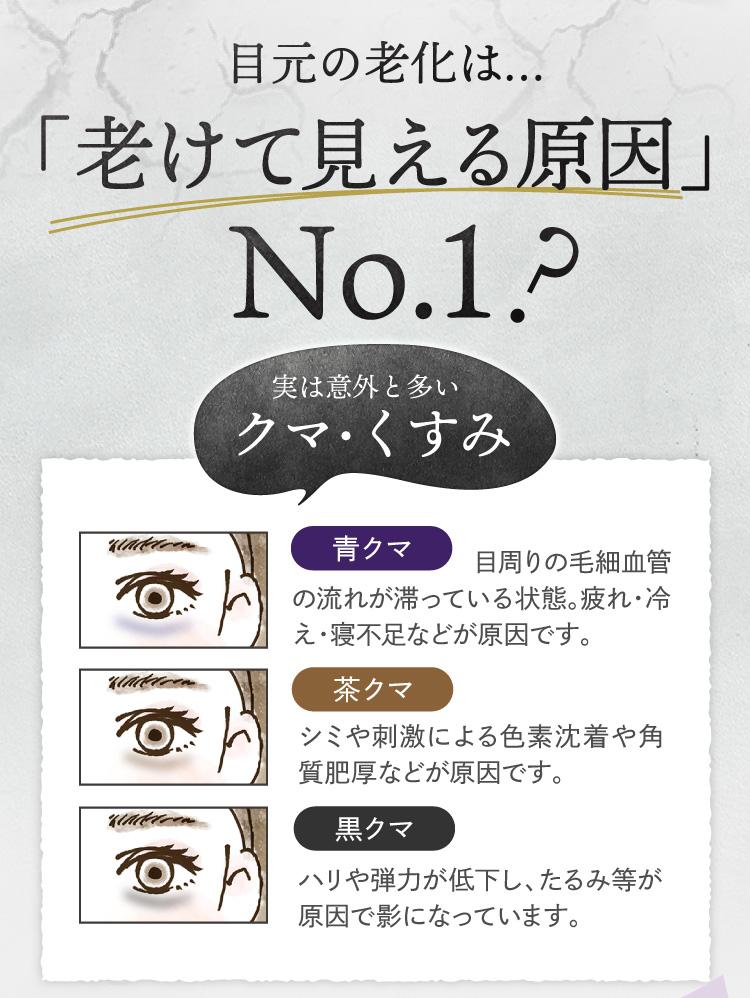 老けて見える原因No.1 クマ・くすみ 青クマ、茶クマ、黒クマ