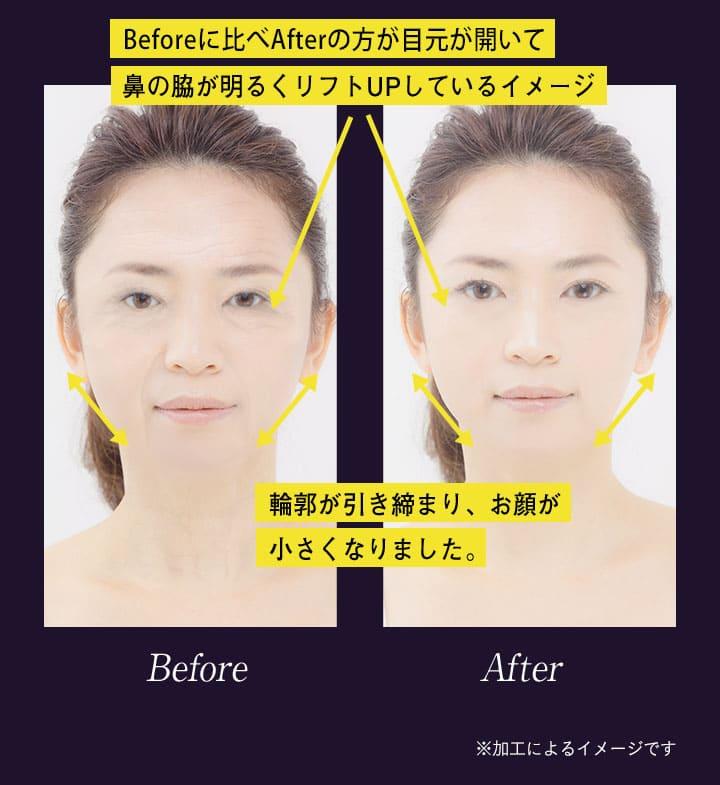 shimaboshi(シマボシ)を使った後なら、鼻の脇が明るくリフトアップ、輪郭が引き締まり小顔に!