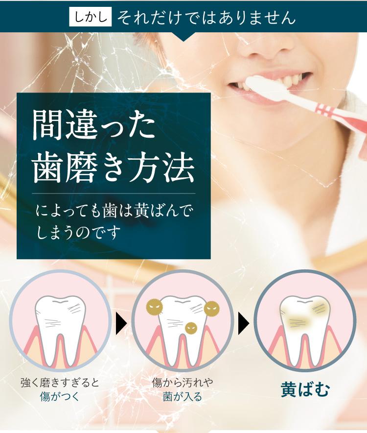 間違った歯磨き方法