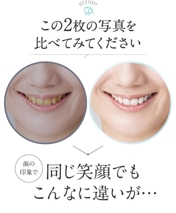 歯の印象で笑顔にこんな違いが