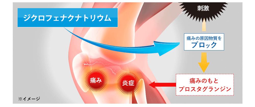 ジクロフェナクナトリウムは痛みの原因物質をブロックし痛みの元プロスタグランジンを生成させないようにします。