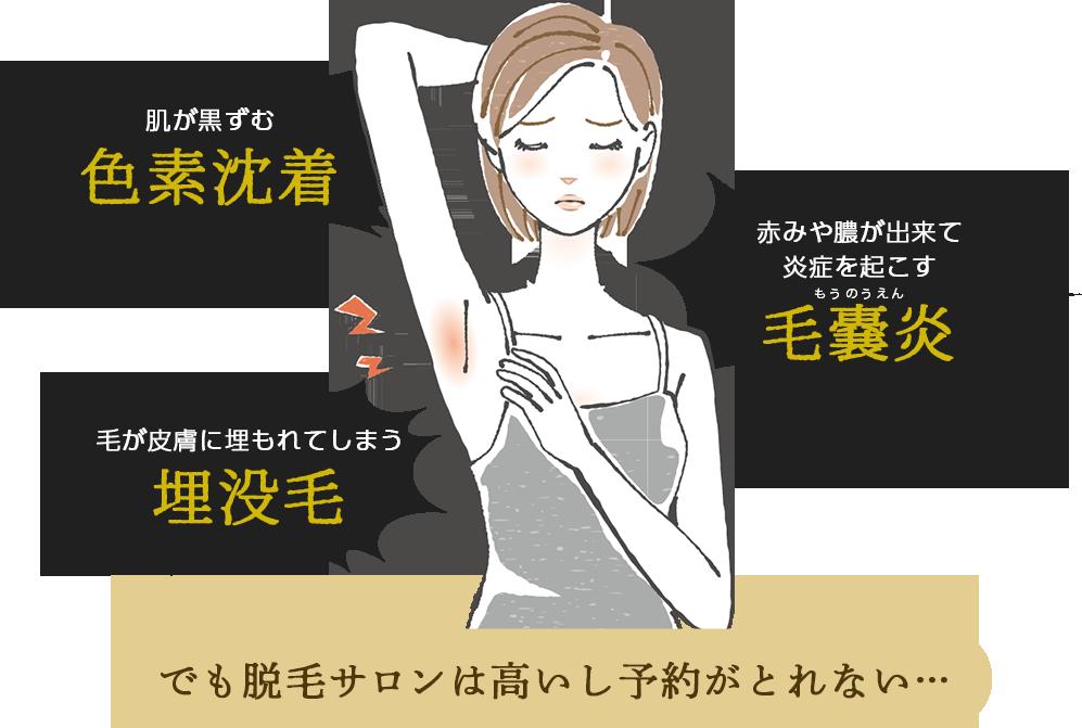 肌が黒ずむ色素沈着 赤身や膿が出来て炎症を起こす毛嚢炎 毛が皮膚に埋もれてしまう埋没毛 でも脱毛サロンは高いし予約がとれない…