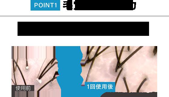 POINT1 毛穴汚れ除去力 皮脂クレンジング成分を配合。発毛剤の浸透を妨げる皮脂汚れをきれいにします。 使用前 毛穴汚れがこんなにきれい! 1回使用後 (撮影機器:マイクロスコープ)
